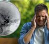 Moždani udar: Drugi je najčešći uzrok smrti, naučite prepoznati simptome