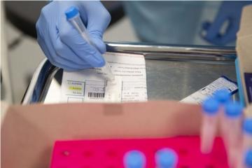 Ugledni znanstveni časopis upozorio javnost na opasnosti cjepiva protiv koronavirusa