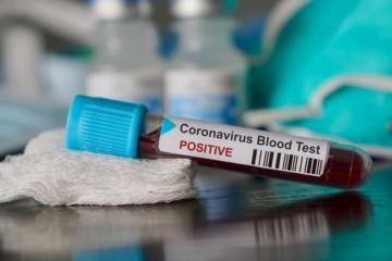"""Beroš: """"Još sedam slučajeva zaraze koronavirusom u Hrvatskoj, ukupno ih je 46. Petero ih je u Osijeku, a dvoje u Zagrebu"""""""